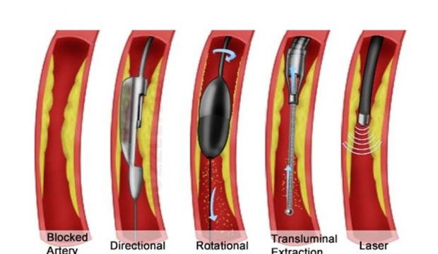 Damar tıkanıklığı tedavisinde son nokta: Tıraşlama