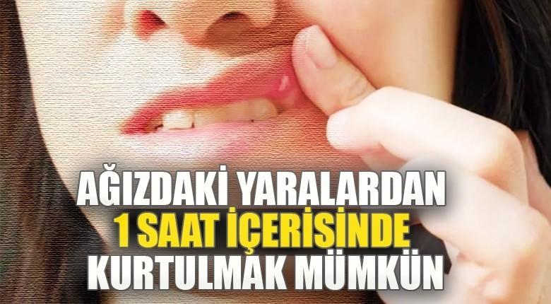 Ağızdaki yaralardan 1 saat içerisinde kurtulmak mümkün !