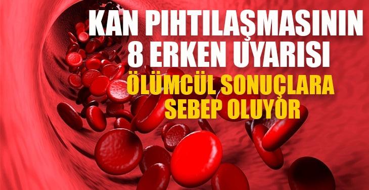 Kan pıhtılaşmasının 8 erken uyarısı